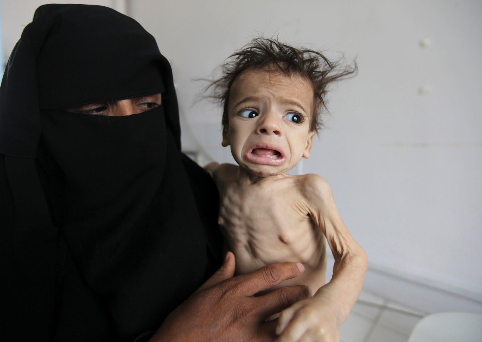 Photos aus Jemen – Genozid – made by Western-Friendly-Muslims