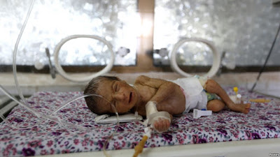 Infants in War-torn Yemen Dying at Alarmingly High Rate