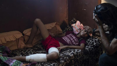 Scores of amputations in Gaza as Israeli troops aim for the legs