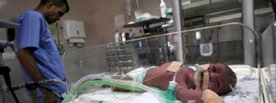 Gaza : Augmentation alarmante des prématurés et des malformations à la naissance